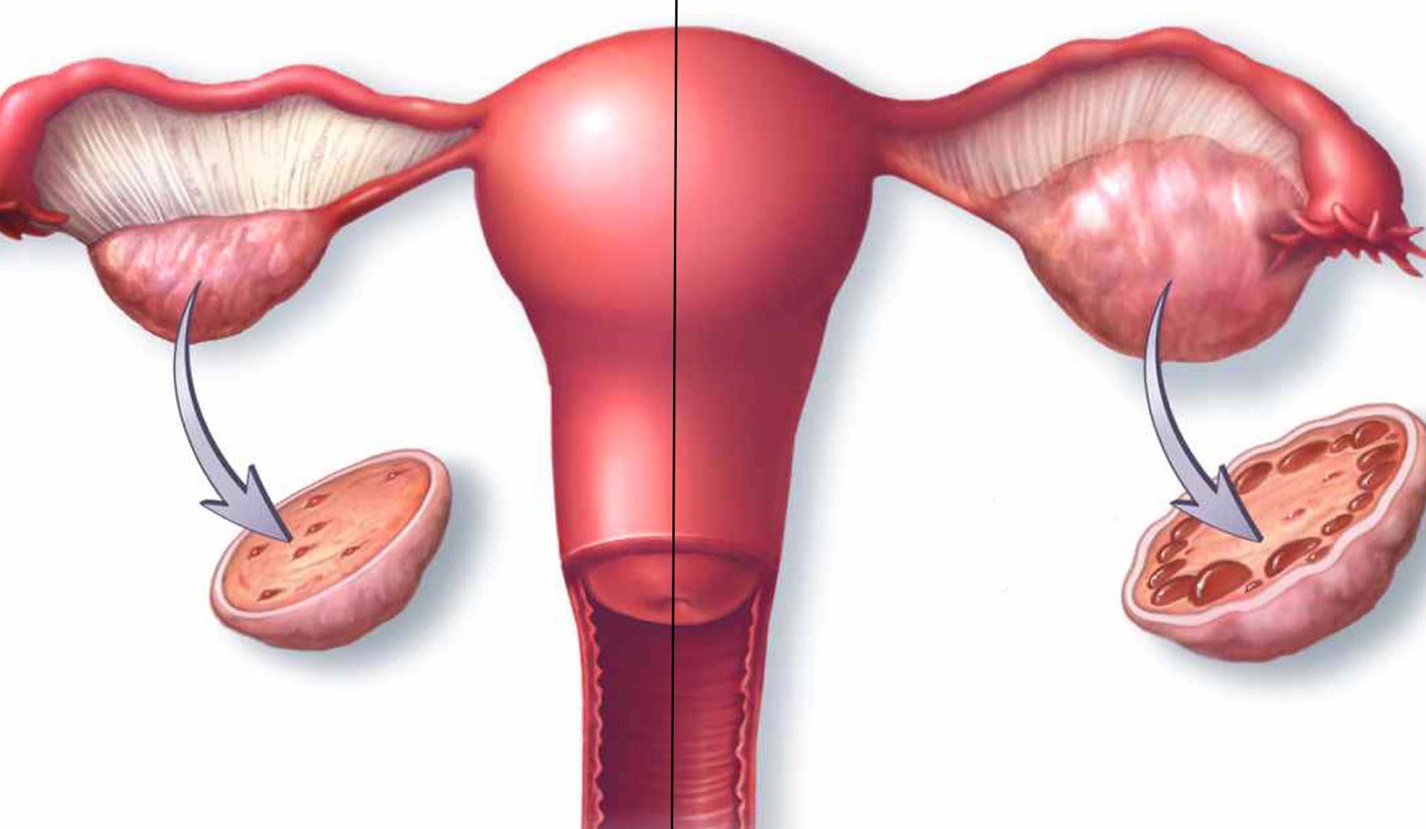 Przyczyny niepłodności: Zespół policystycznych jajników (PCOS)