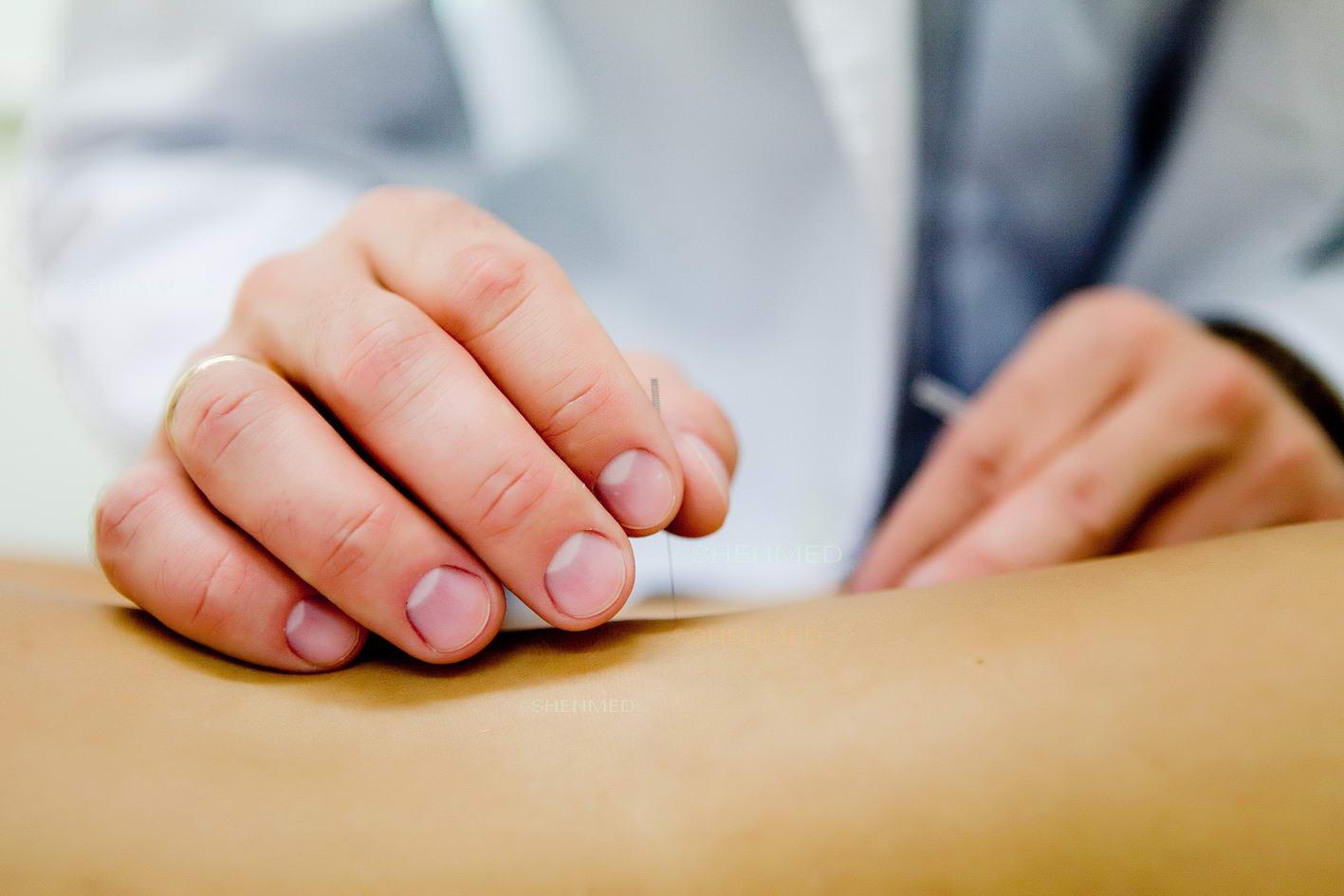 Akupunktura: Co Mówi Tradycyjna Medycyna Chińska